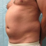 LipoSculpture Before