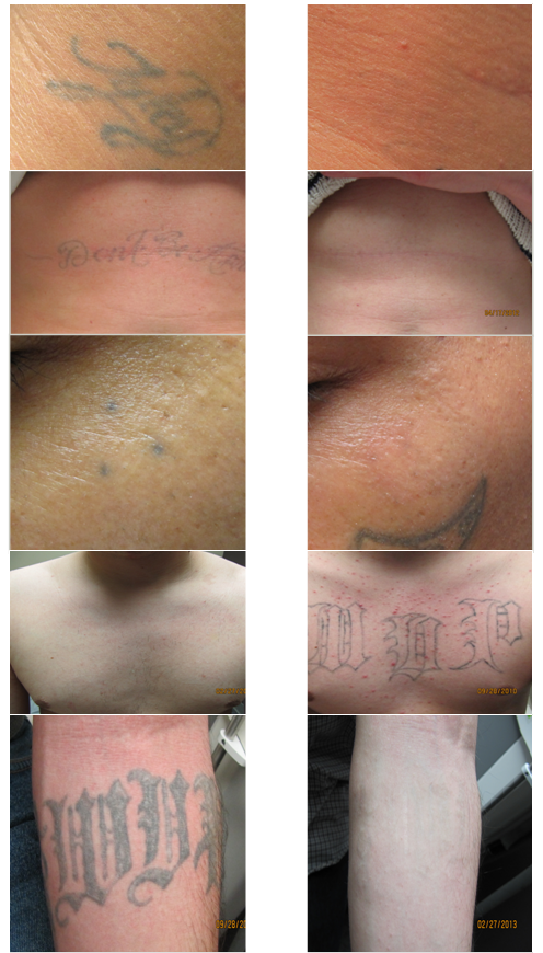 13 skin renew laser tattoo removal best tattoo for How much does a tattoo removal cost
